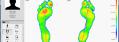 Footscan (Pressure Analysis)